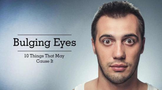 Bulging Eyes - 10 Things That May Cause It