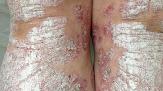 Biologics – A Hope to Cure Psoriasis
