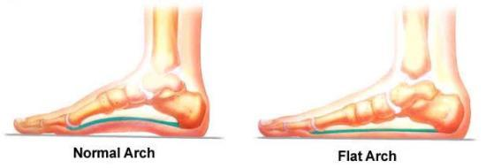 Flat Foot – Types, Causes and Remedies