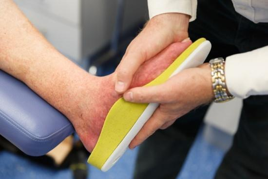 Customised Orthotics for Charcot Foot