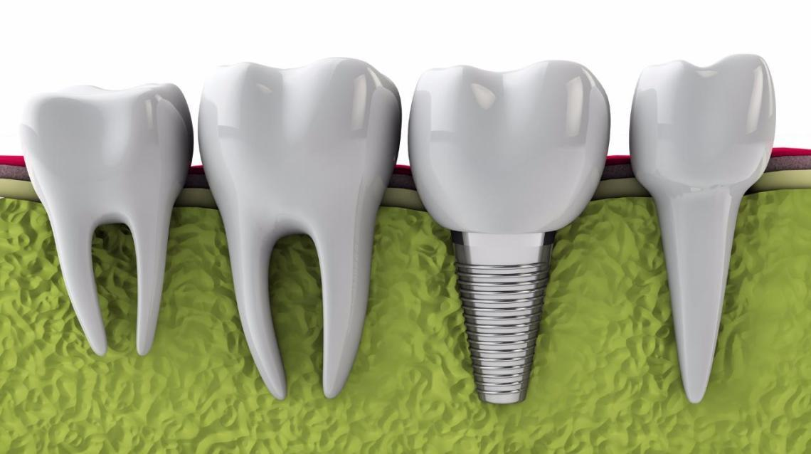 Dental implants.........bcoz No One Should Die With Teeth Inside a Bowl