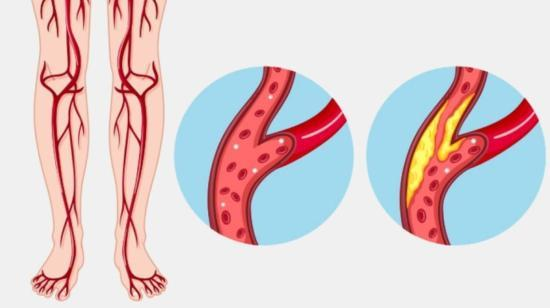 "Peripheral Arterial Occlusive Disease (Paod): Cause of a ""Leg Attack"""