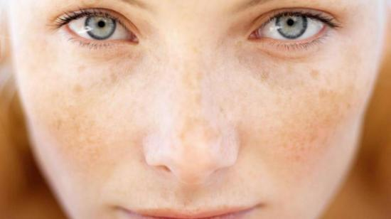 Pigmentation on the Face
