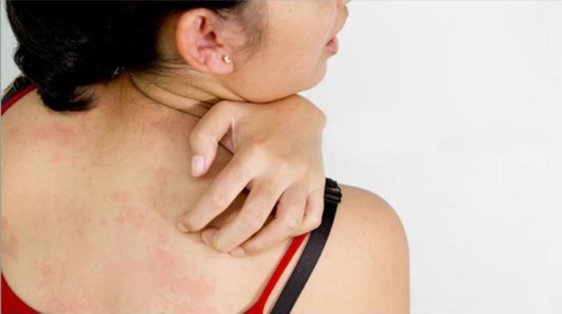 Top 10 Ways to Keep Fungal Infection at Bay!
