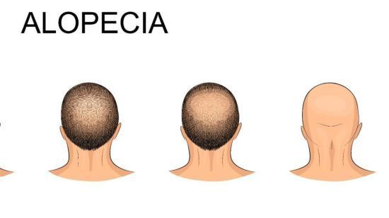 Male Pattern Baldness Alopecia & Four Early Warning Signs?