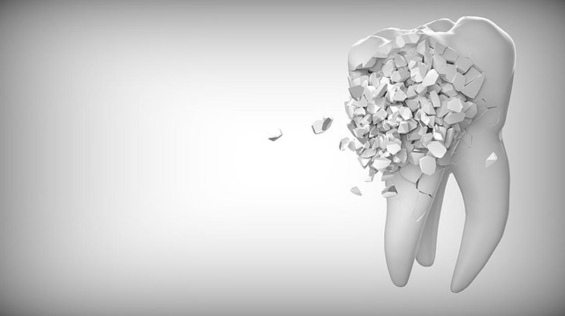 10 Dental Myths Busted