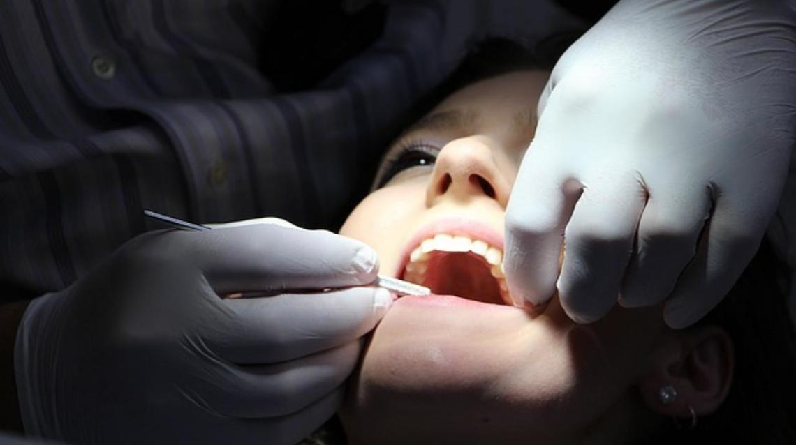 What Happens at Dental Checkups