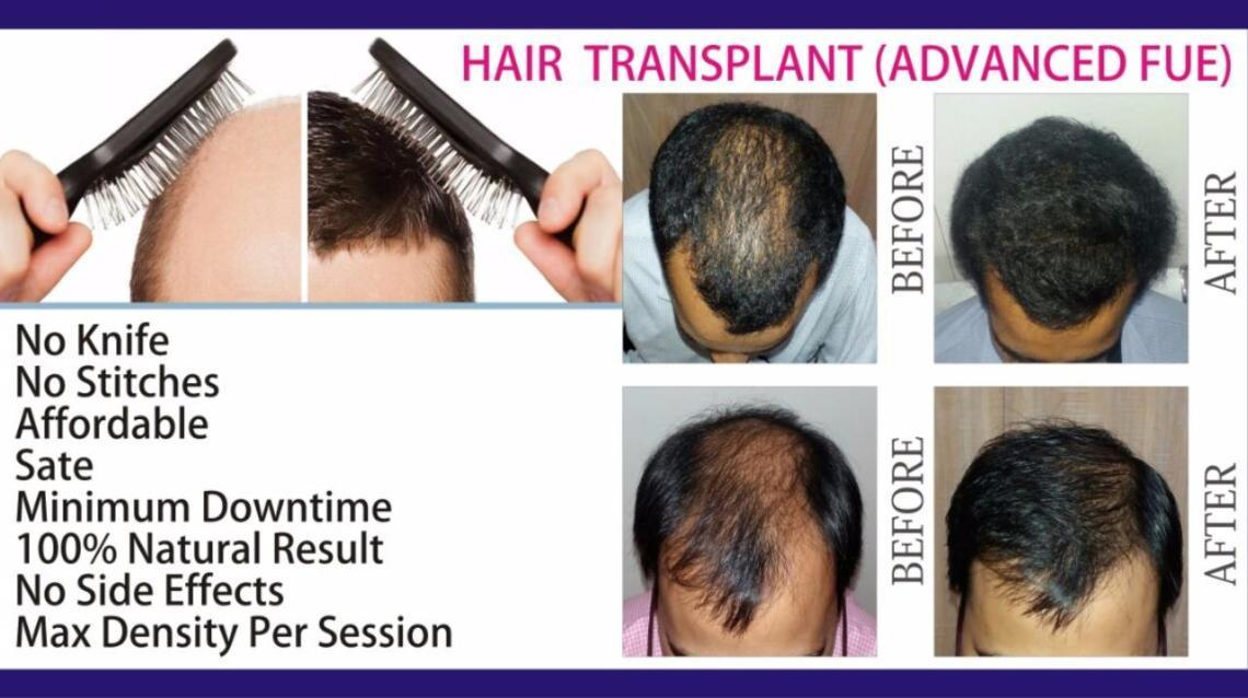 Hair Transplant -  the Fue Technique !!!!!!!