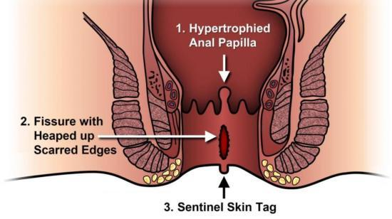 Do You Feel Pain When Passing Stool? (ANAL FISSURE)