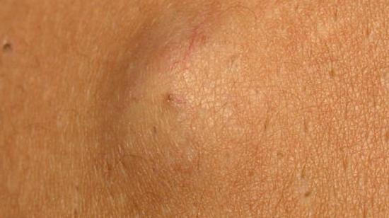 "Swelling on Skin Could Be ""Sebaceous Cyst"""