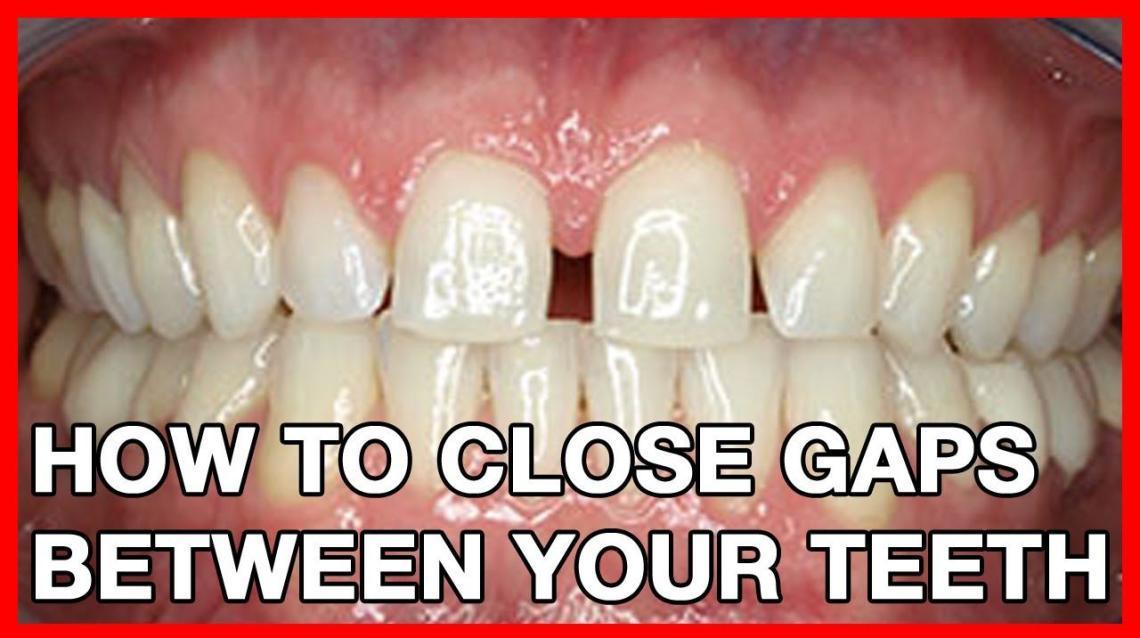 Fix Gaps Between Teeth With Corrective Treatments