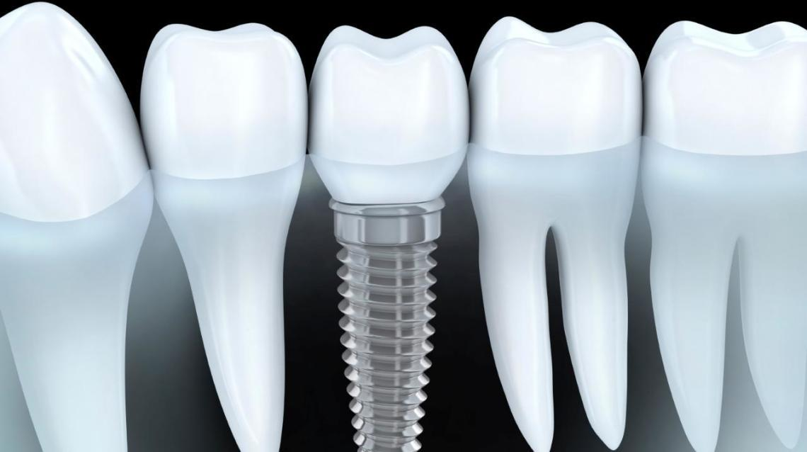 Myths and Facts About Dental Implants