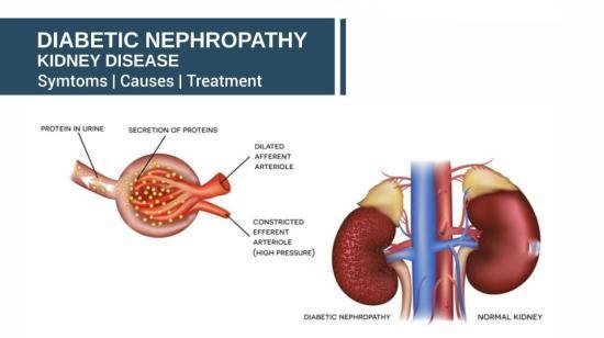 Understanding Diabetic Kidney Disease