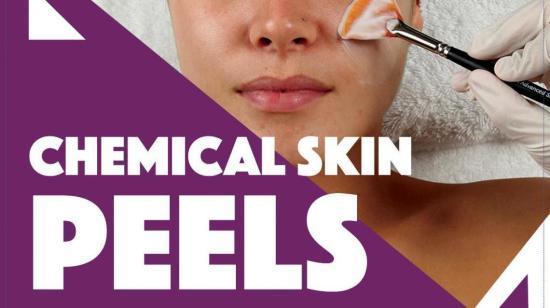 Benefits of Chemical Skin Peeling