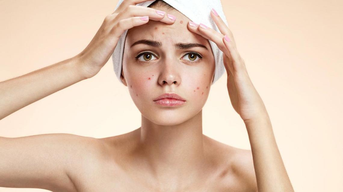 Are You Making These Summer Acne Mistakes?