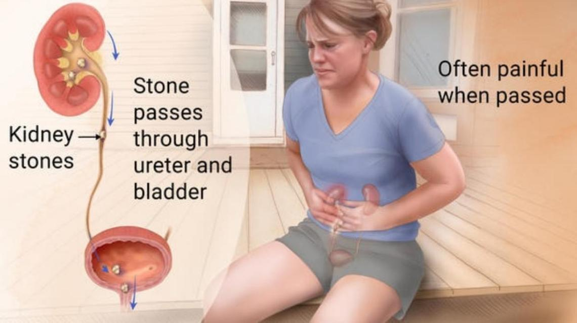 Kidney Stones : Myth vs. Fact