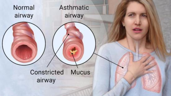 Homeopathic Remedies for Asthma