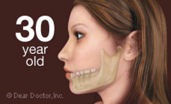 Dental Implant Compared to Dental Bridge