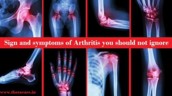 Sign and Symptoms of Arthritis You Should Not Ignore
