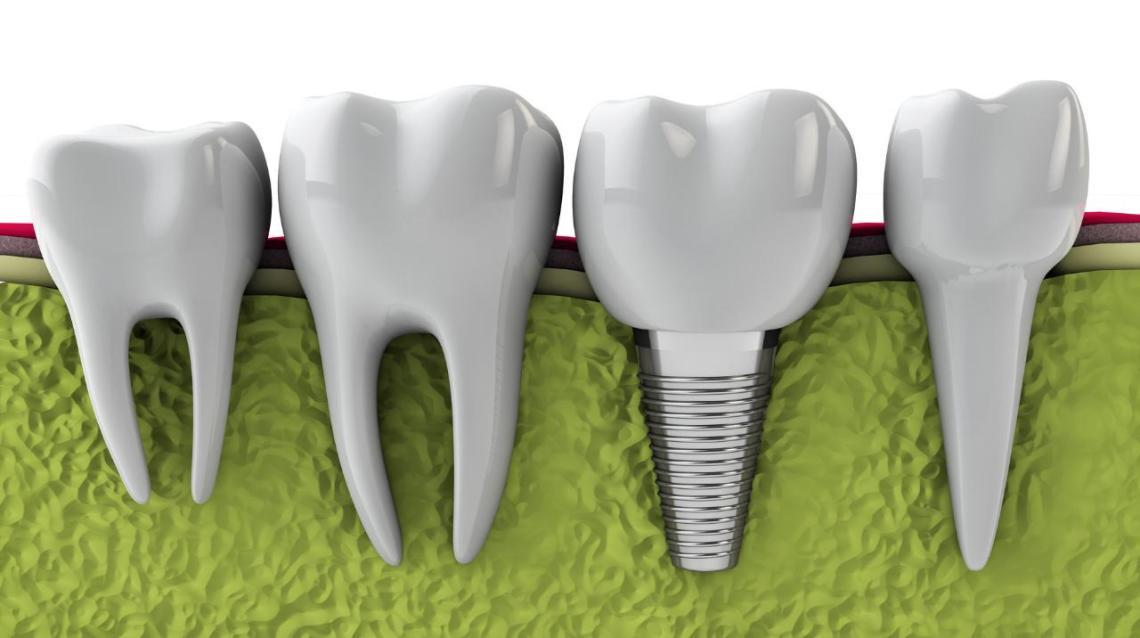 Dental Implants to Be Cheaper by 67% ?