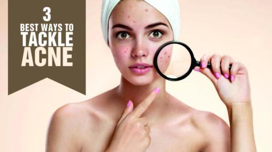 3 Best Ways to Tackle Acne/pimples