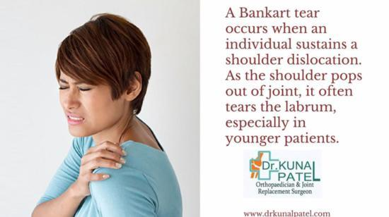 Bankart Shoulder Injuries