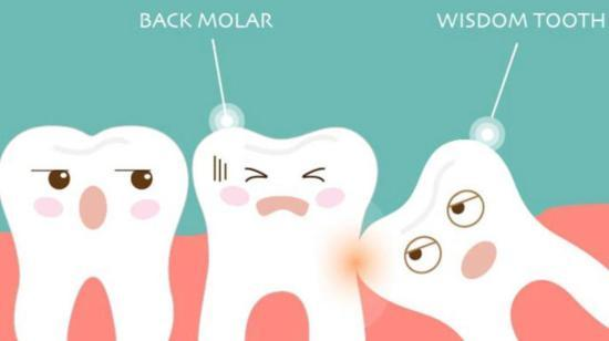 Wisdom Teeth- Unfolding Facts and Myths
