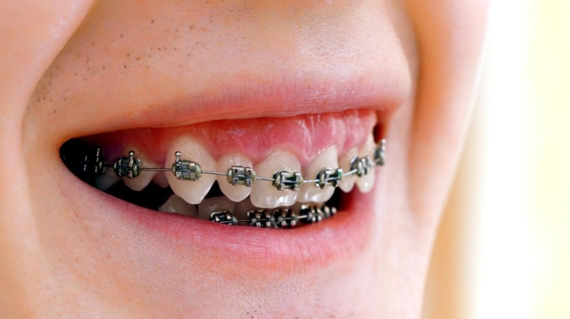 Orthodontic Braces Basics