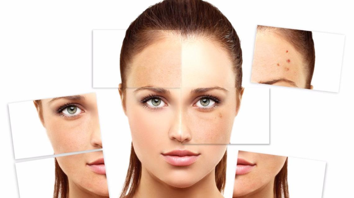Reveal Your Real Skin With Homoeopathy