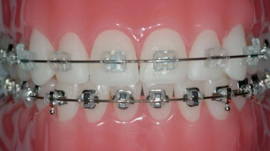 Metal Braces or Ceramic Braces: Which Ones to Choose?