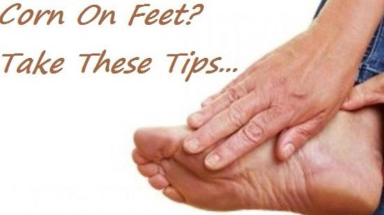 Tips To Prevent Corn and Calluses Formation