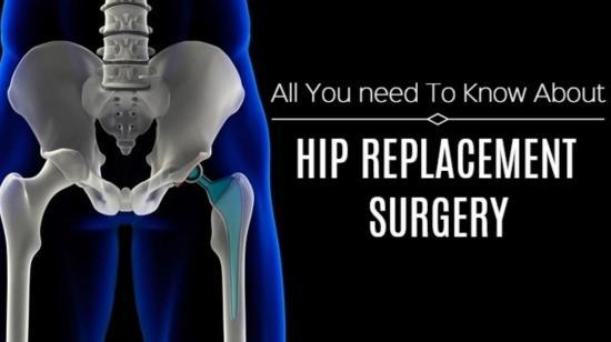 All You Need to Know About Hip Replacement Surgery