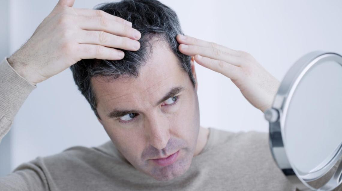 Psychological Impact of Hair Loss in Men