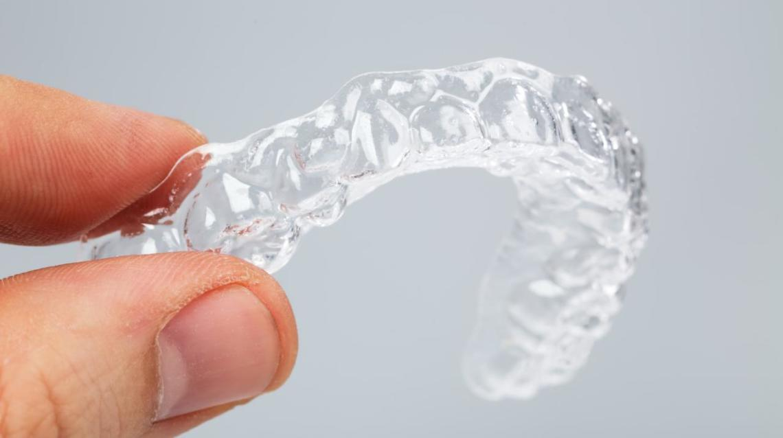 Five Things You Need to Know About Clear Aligners