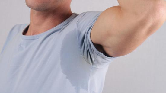 """Excess Sweating""  Botox It"