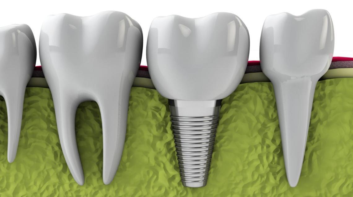 Implants : Why, When & Where