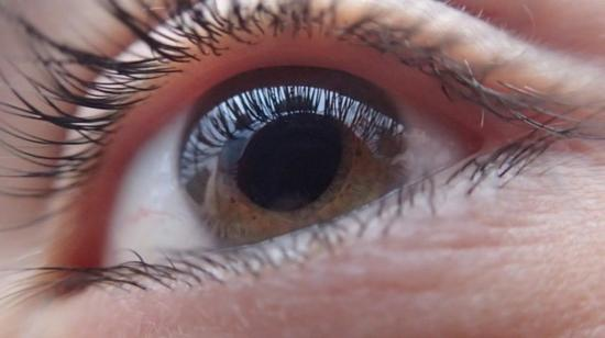 5 Important Tips to Prevent Computer Vision Syndrome