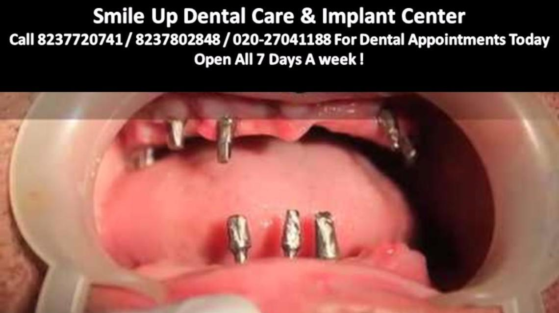 Implant Is Absolutely Safe in the Patient Even With Diabetes
