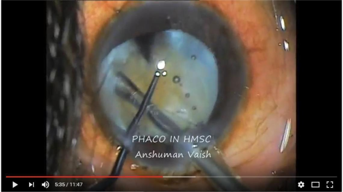 Facts Fixer – Cataract & Phaco