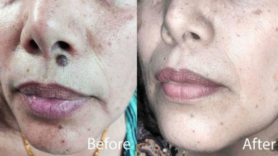 Treatment Options for Mole Removal - All You Need to Know