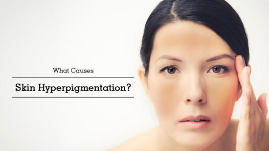 What Causes Skin Hyperpigmentation?