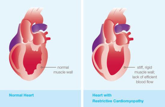''Restrictive Cardiomyopathy (RCM)'