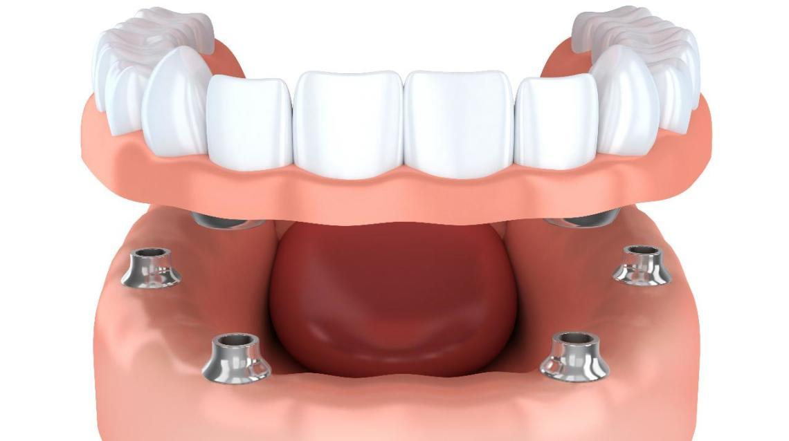10 Reasons Why Dental Implants Are Best for Teeth Replacement