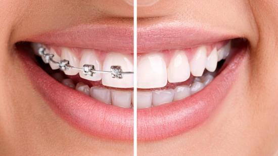 Know Whether You or Your Child Will Need Dental Braces?