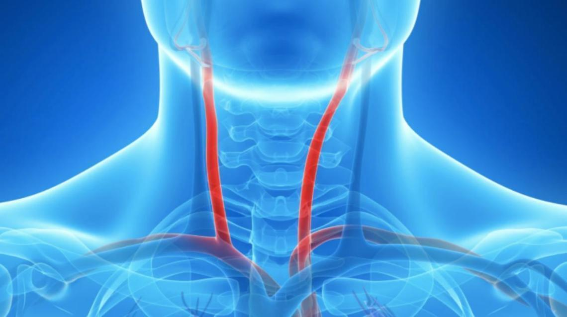 "Carotid Artery Disease: The Cause of Stroke or a ""Brain Attack"""