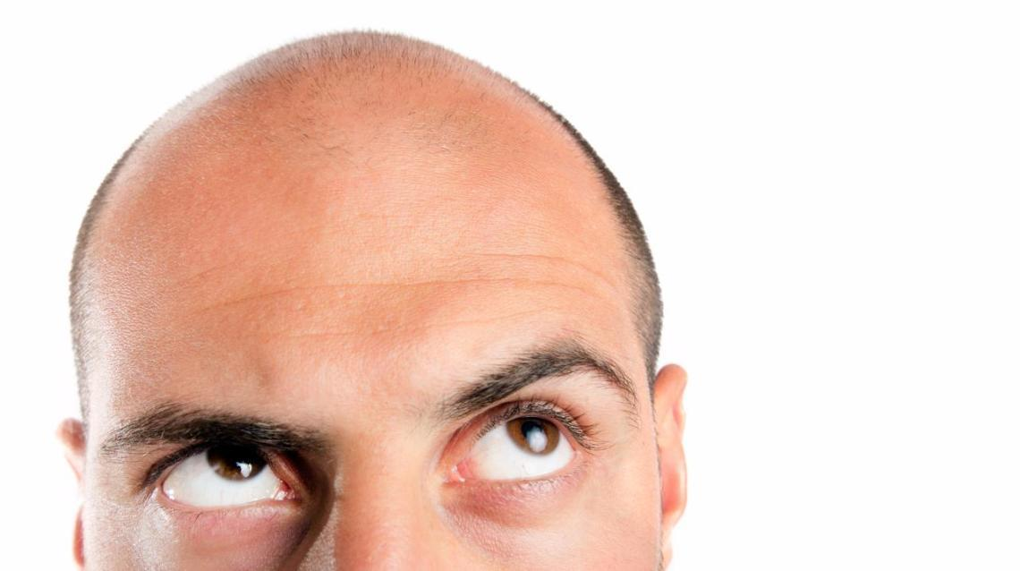 Guide on Choosing Your Hair Transplant Surgeon