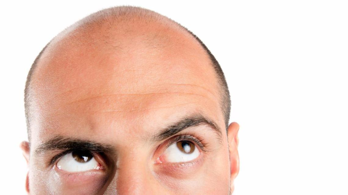 Hair Transplant- Doubts & Myths
