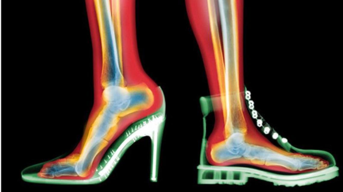 Footwear With Heels And Their Biomechanical Impact On Heel Pain