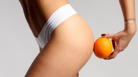 Cellulite- Myths and Facts