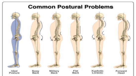 Right or Wrong Posture